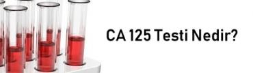 CA 125 Testi Nedir?