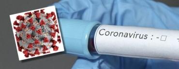 Koronavirüs (COVID-19) test sonuçları öğrenme?